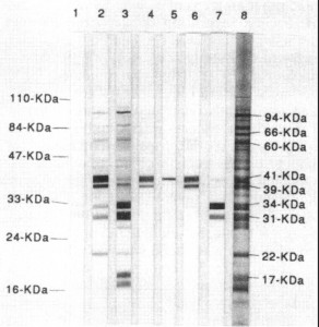 Example of a Western Blot Test